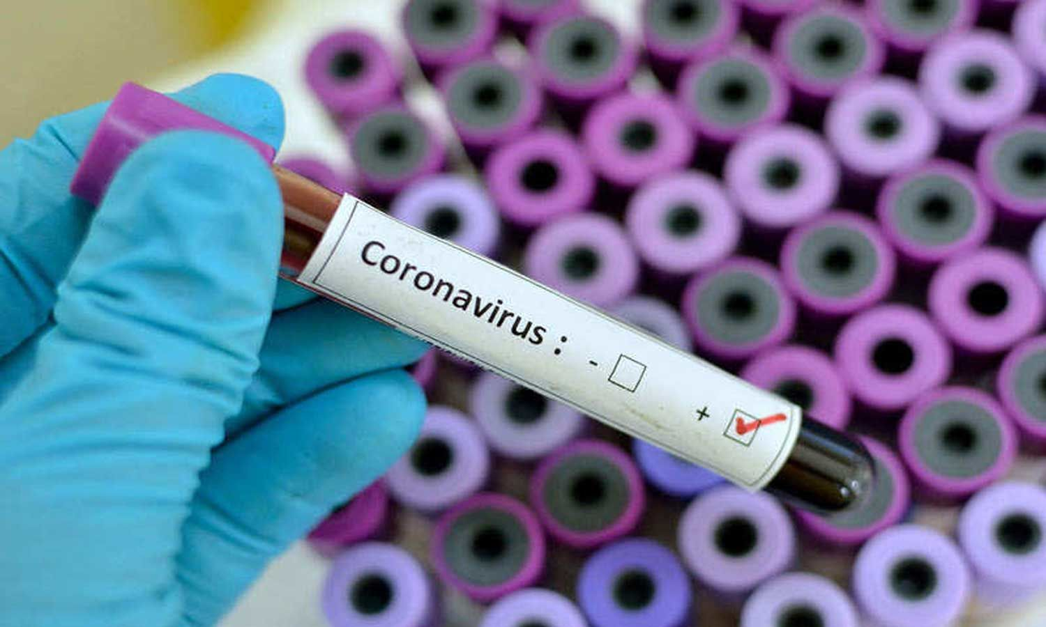 Pharma firm Anges and Osaka University to begin testing coronavirus vaccine on animals